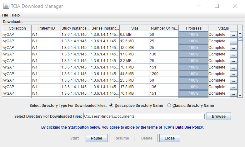 TCIA Download Manager, downloads complete